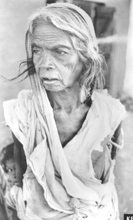 A mother aged by chronic malnutrition and dehydration